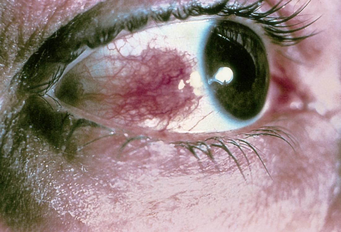 Склерит глаза: причины, симптомы и лечение, если воспаление склеры долго не проходит, капли, диагностика, виды, фото