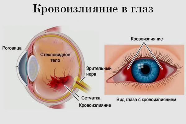 Капли в глаза при лопнувшем сосуде: обзор эффективных препаратов, показания и противопоказания, действие, отзывы