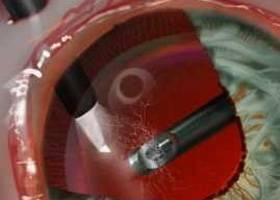 Операция микроинвазивная витрэктомия глаза