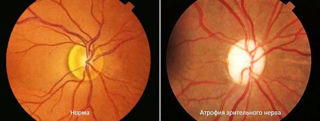 Атрофия зрительного нерва (частичная, нисходящая): лечение, симптомы поражения
