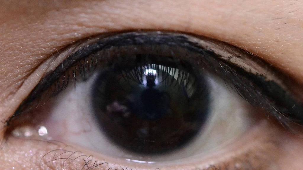 Самые редкие цвета глаз в мире: влияние света и меланина на оттенок глаз