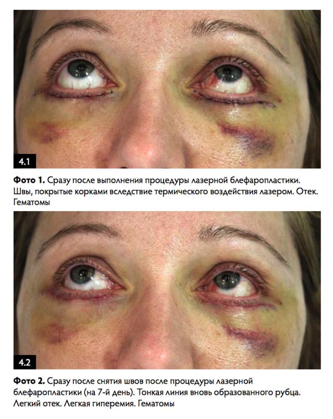Реабилитация после верхней и нижней блефаропластики