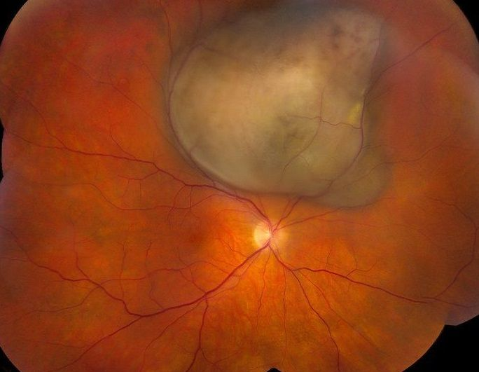 Невус хориоидеи глаза | лечение глаз