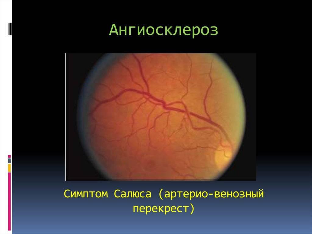 Ангиосклероз сосудов сетчатки: что это такое, код по мкб 10, причины, симптомы и лечение