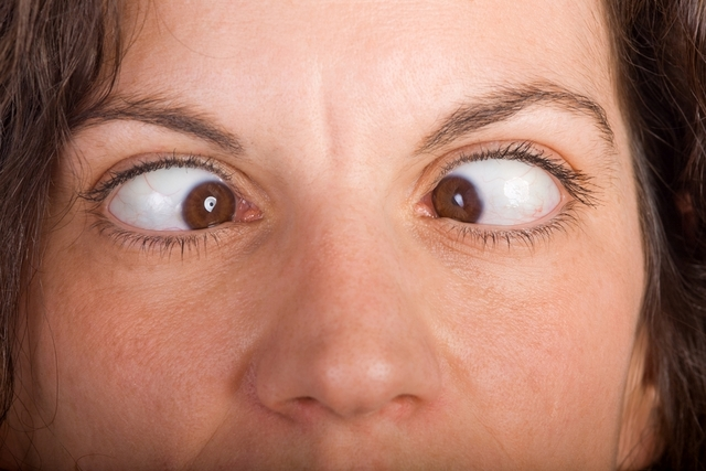 Можно ли заболеть косоглазием и как его лечить