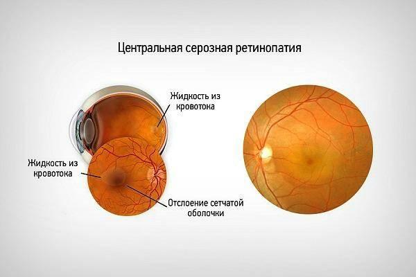 Виды ретинопатии и ретинальных сосудистых изменений, диагностика и лечение