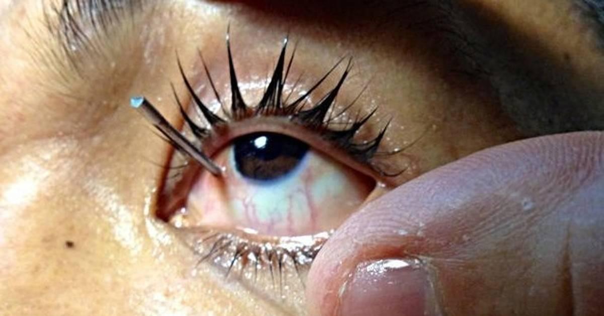 Болит глаз, как будто что-то попало, но ничего нет?