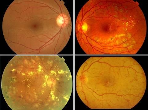 Отслоение сетчатки глаза с разрывом – причины развития и лечение