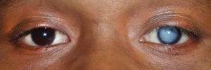 Глаз видит только наполовину — на какую болезнь может указывать данный симптом?