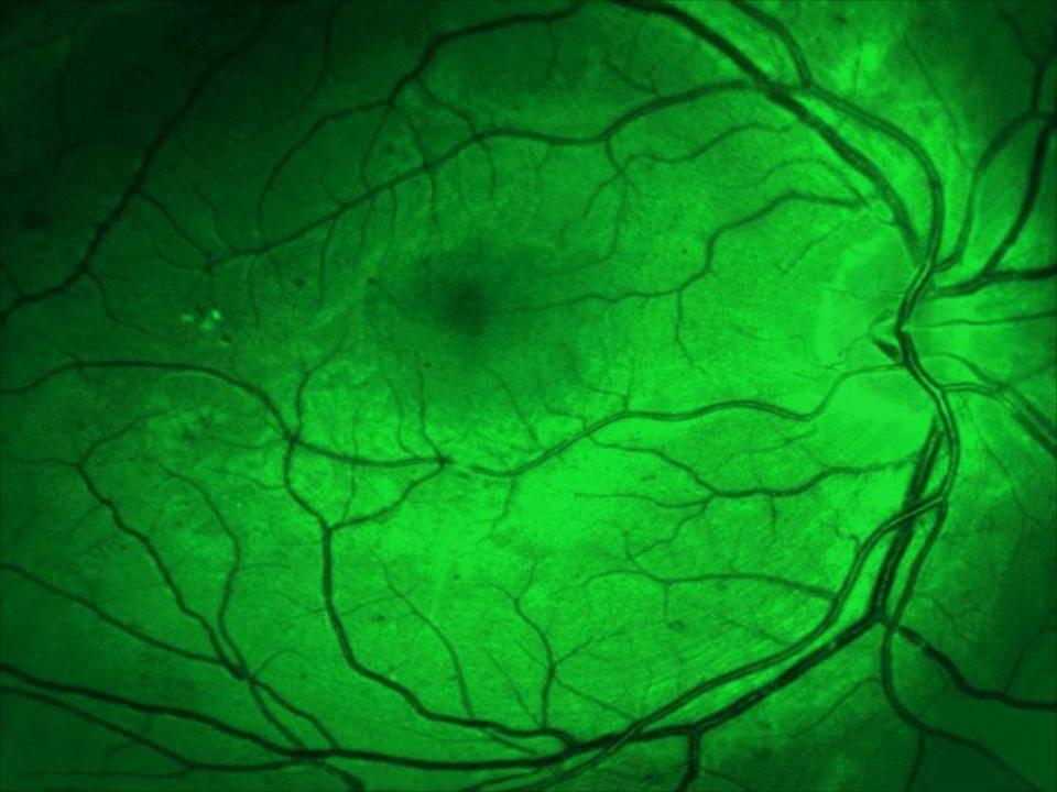 Флуоресцентная ангиография сетчатки фаг что покажет