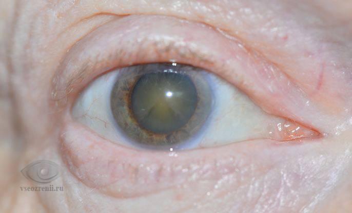 Пелена перед глазами: что делать, лечение каплями | компетентно о здоровье на ilive