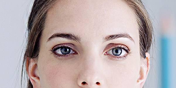 Вопросы офтальмологу: как видят косоглазые люди