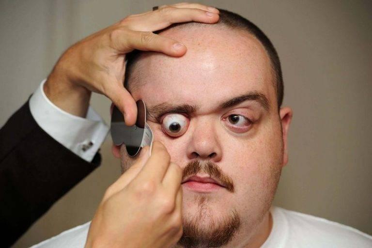 Почему при болезнях щитовидной железы выпучиваются и болят глаза