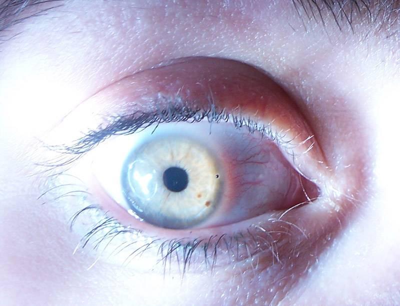 Черные точки в глазах - что это такое: почему появляются, симптоматика заболевания, как избавиться от пятен