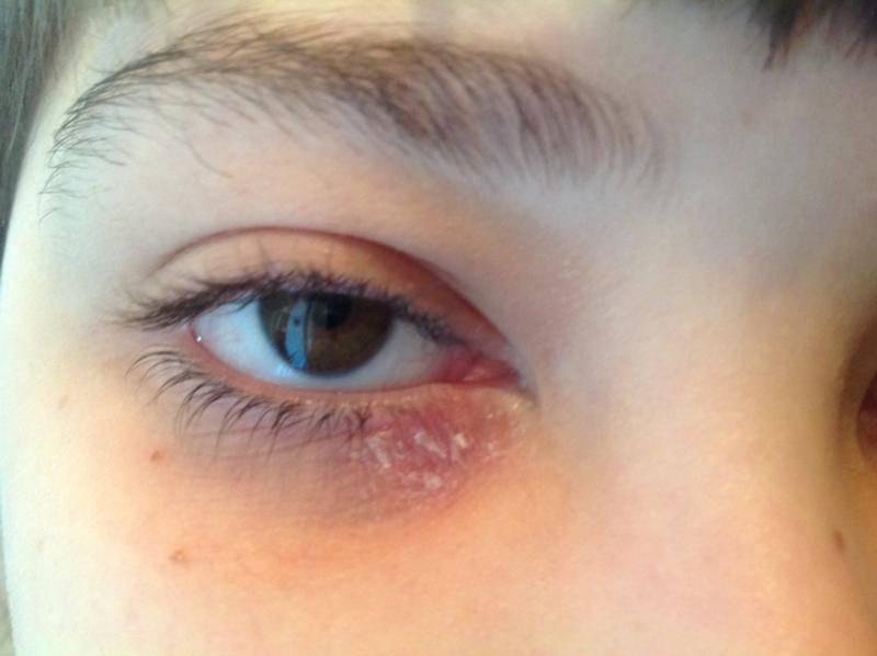 Шелушатся веки глаз – причины и лечение