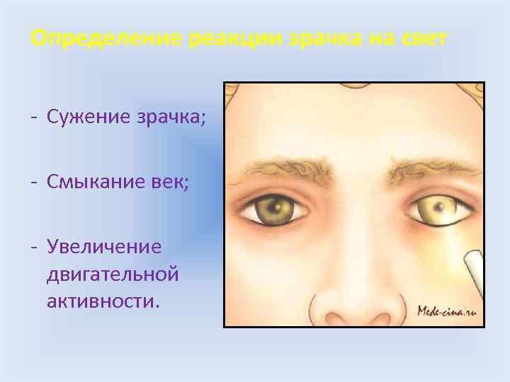 Признаки употребления наркотиков (признаки наркомана)