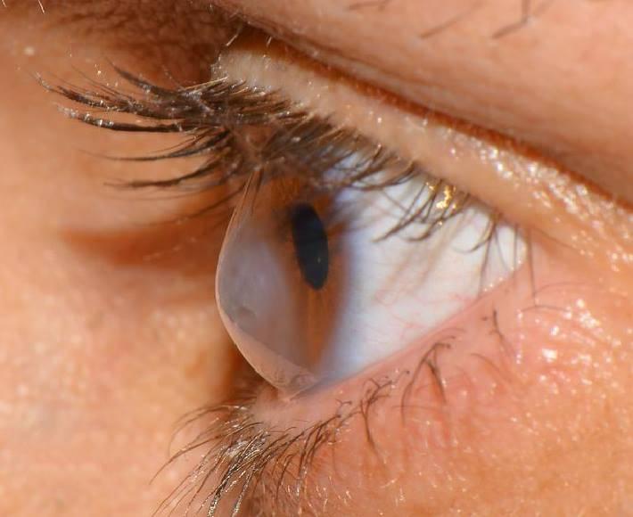 Кератоконус глаз: что это такое, симптомы, лечение и операция