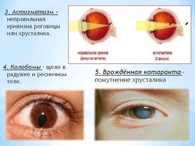 Что такое миопический астигматизм: лечение обоих глаз