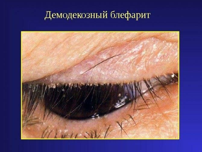 Блефарит - что это? фото, симптомы и лечение у взрослых