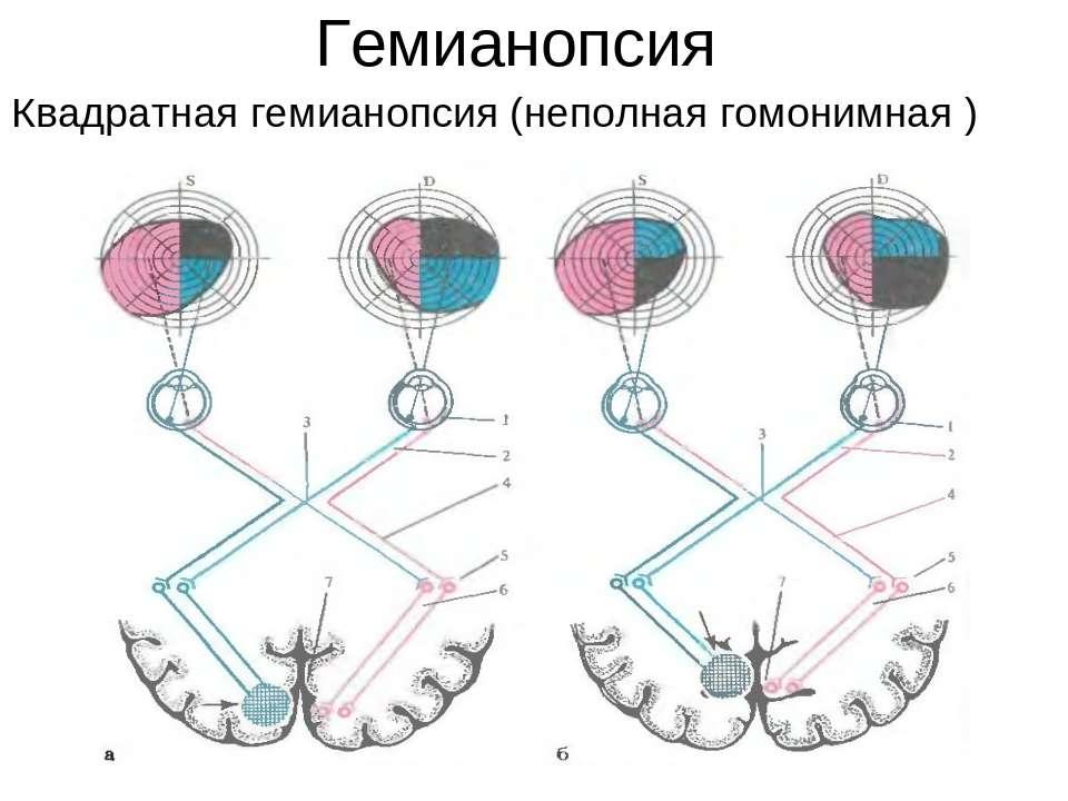 """Гемианопсия: симптомы и лечение - """"здоровое око"""""""