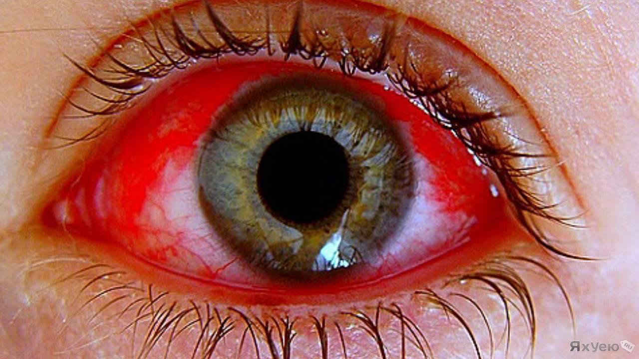 Грибковое поражение глаз: причины, симптомы и методы лечения