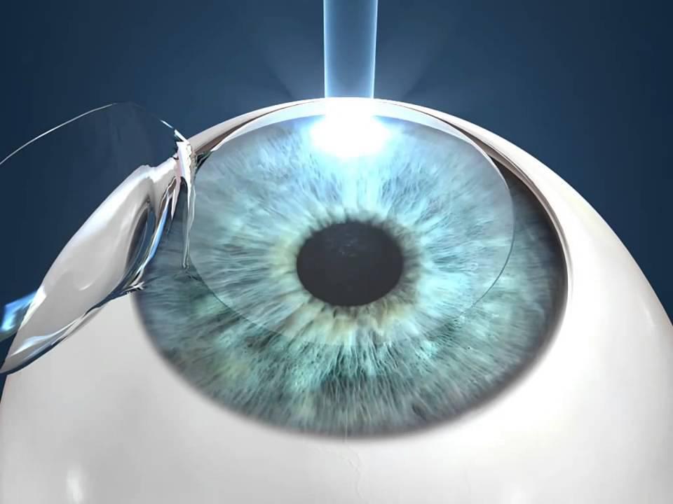 Последствия лазерной коррекции зрения: побочные эффекты, осложнения, каких негативных реакций стоит ожидать при близорукости