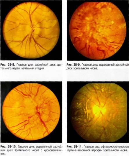 Застойный диск зрительного нерва: причины, симптомы и лечение заболевания