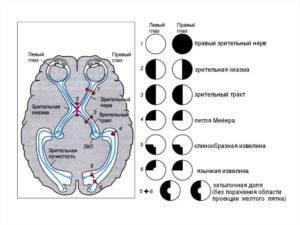 Что такое гемианопсия: симптомы, лечение, опасность расстройства зрения