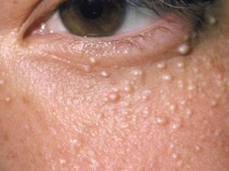 Милиумы на лице - как избавиться от просянки под глазами