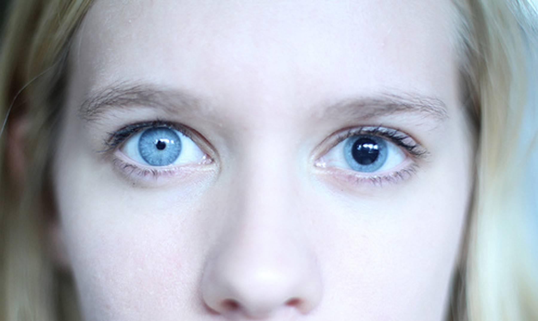 Разный цвет глаз (гетерохромия глаза)