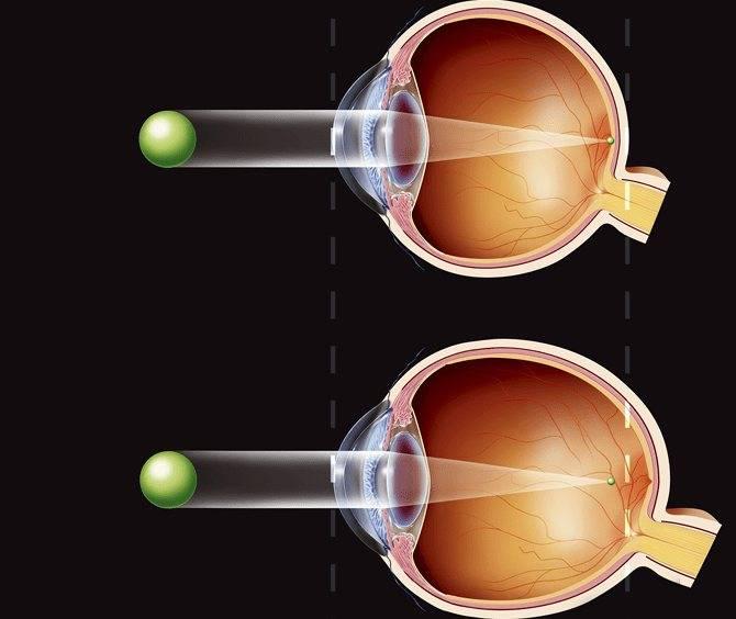 Прогрессирующая миопия - что это, как остановить падение зрения