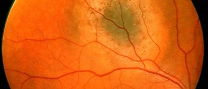 Пигментный невус хориоидеи:: симптомы, диагностика и лечение. клиники. консультация офтальмолога.