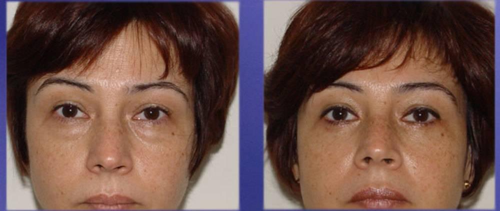 Грыжи под глазами: причины, симптомы, как убрать, профилактика (фото)