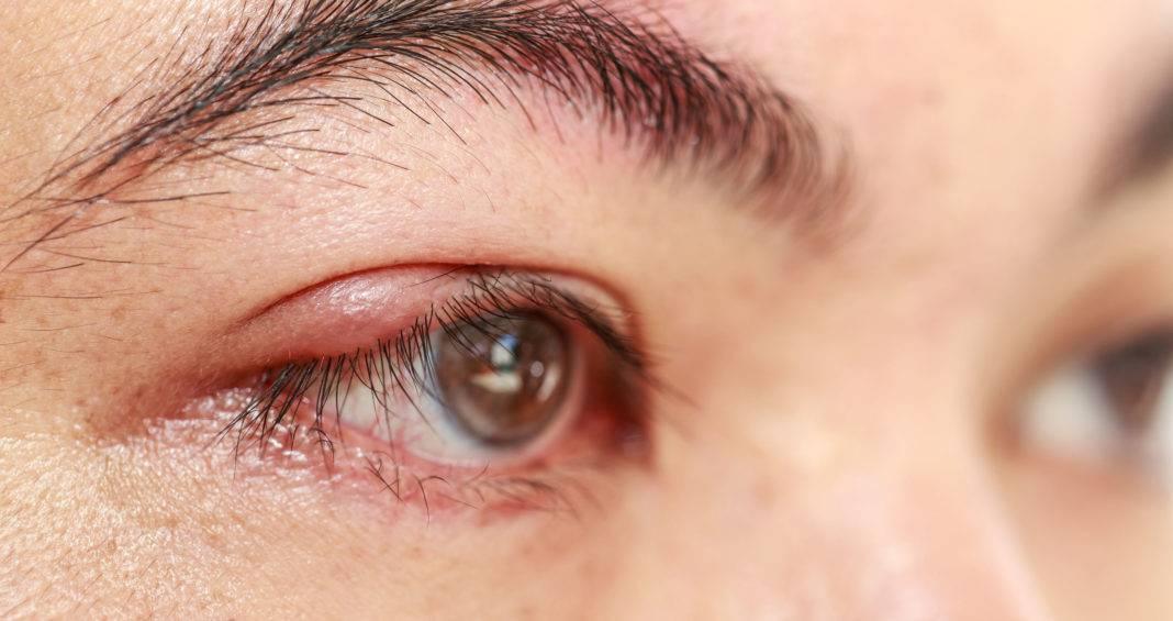 Воспаление глаза у взрослых - причины, что делать и как лечить