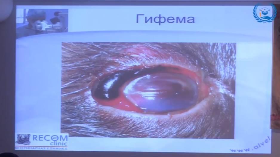 В чем таится опасность при ушибе (контузии) глаза?
