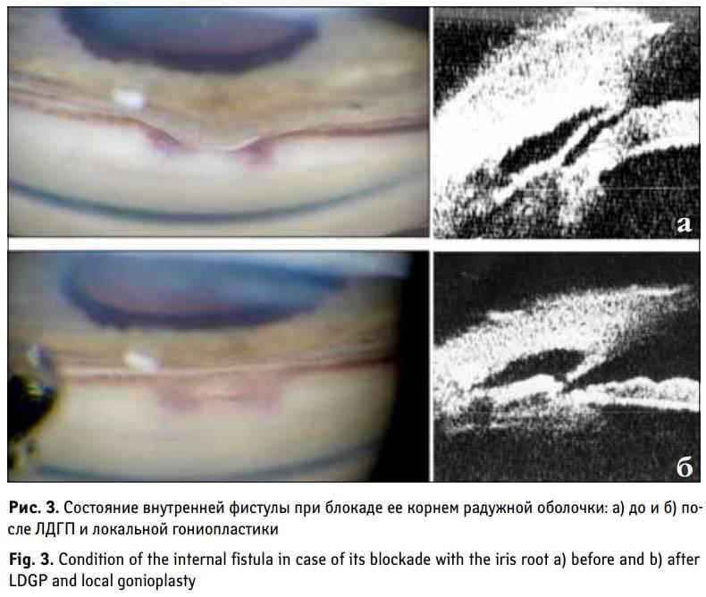 Лазерная иридэктомия: показания и суть операции