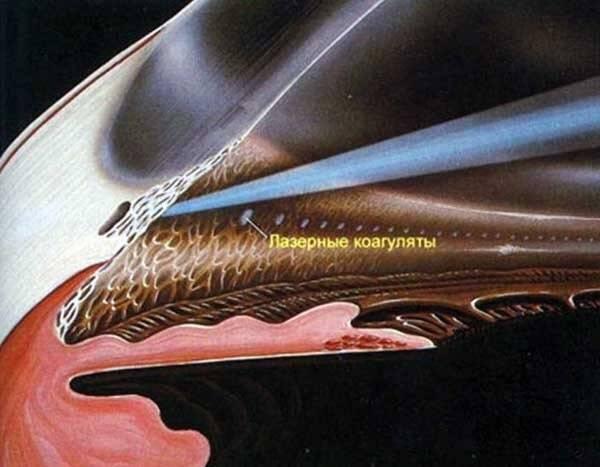 """Слт - селективная лазерная трабекулопластика, отзывы и цены на операцию в москве - moscoweyes.ru - сайт офтальмологического центра """"мгк-диагностик"""""""