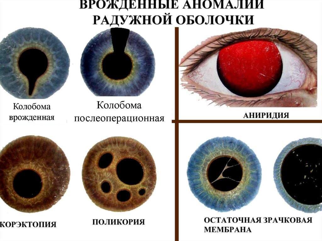 Что такое колобома радужки глаза и как её лечить