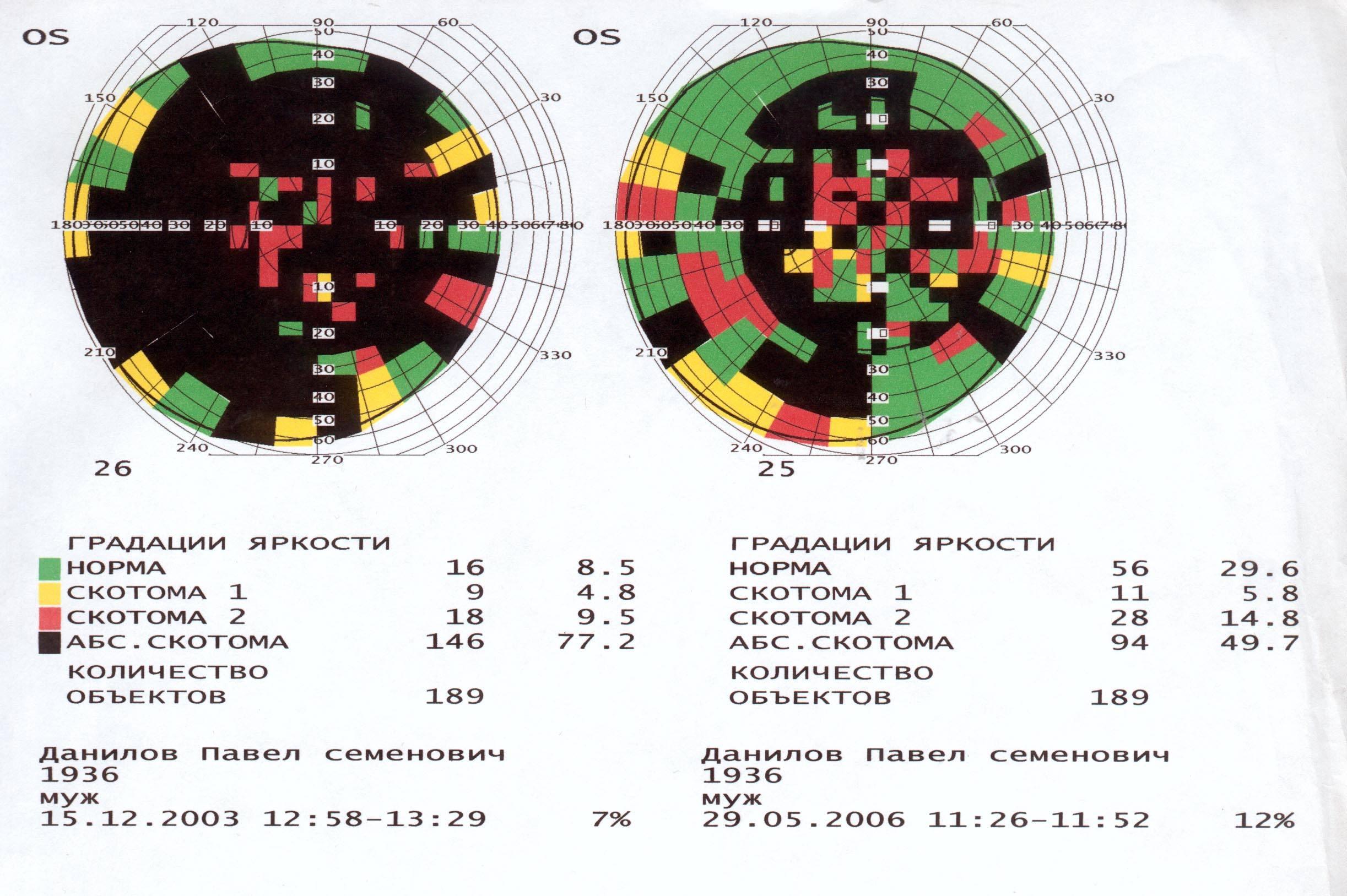 Скотома в поле зрения: причины и лечение. виды скотом, диагностика и лечение. сайт «московская офтальмология»
