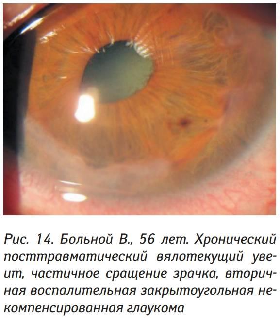 Вторичная глаукома