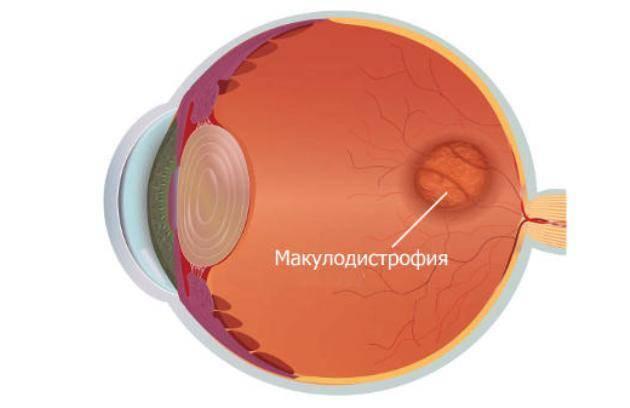 Оптическая когерентная томография (окт) сетчатки глаза