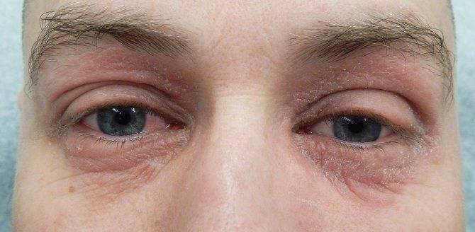 Дерматит век и под глазами: как правильно лечить мазями и другими средствами
