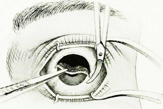 Эвисцерация глазного яблока: описание, показания, ход операции