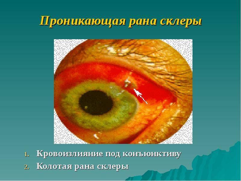 Травмы конъюнктивы: инородное тело, разрыв.