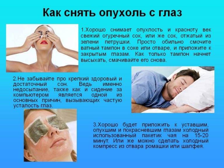 Как убрать опухоль с глаз: самые эффективные методы лечения от слез и после удара в домашних условиях, народные средства и лекарства, причины, фото