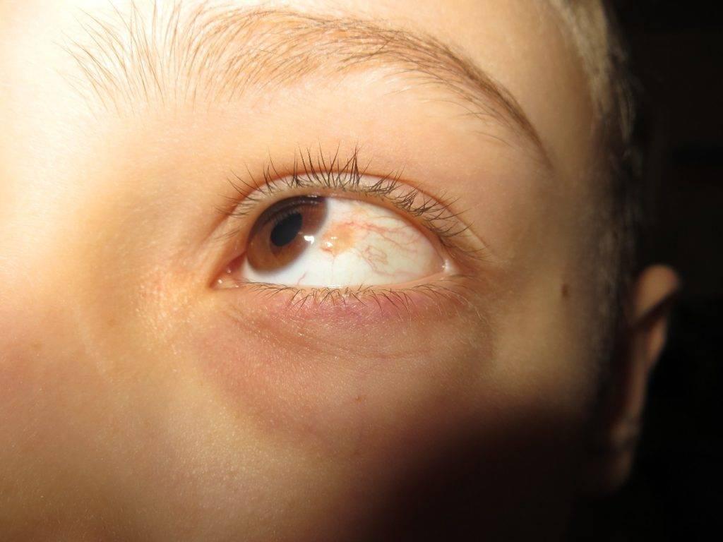 Может ли болеть невус в глазу