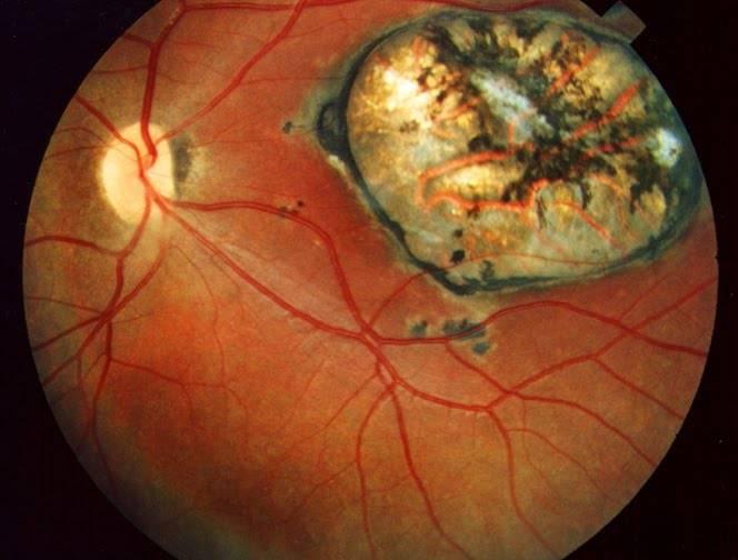 """Хориоретинит: разновидности, симптомы, лечение - """"здоровое око"""""""