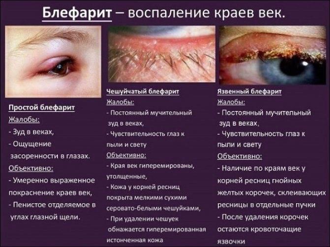 Воспаление века верхнего - воспаленный глаз, покраснел и опух: как и чем лечить, что делать, если воспалилось, лечение