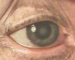 Склероз хрусталика: что это такое, рекомендации по лечению глаза, а также симптомы и последствия заболевания