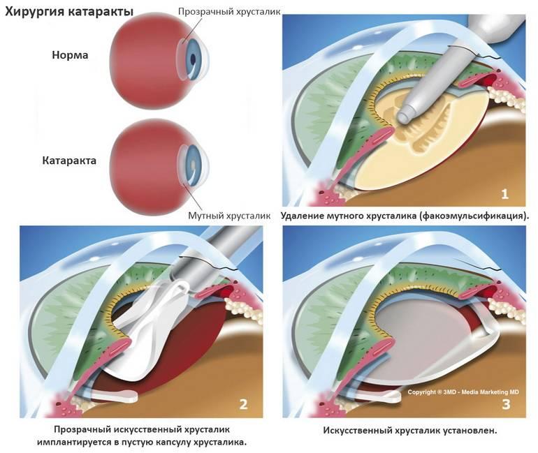 Склеропластика: особенности операции и возможные осложнения